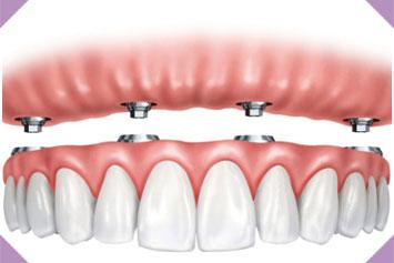 Pérdida de todos los dientes 2 img