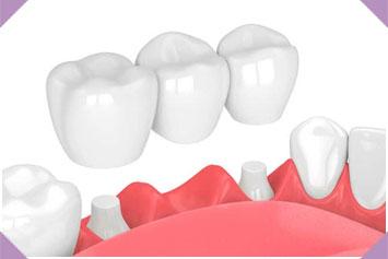 Prótesis Dentosoportada img