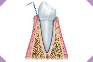 Periodoncia img 3